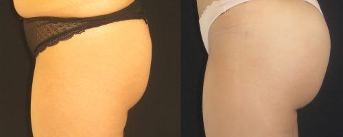 lipofilling des fesses