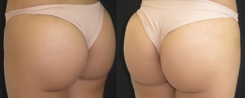 Lipofilling des fesses (les 2 photos sont le résultat post-opératoire)