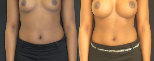 Augmentation mammaire par prothèse anatomique en dual plan par voie sous-mammaire