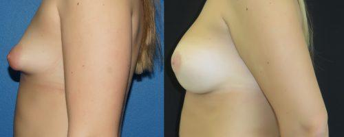 augmentation mammaire par prohèses pour seins tubéreux