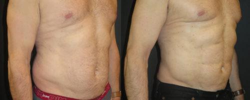 Lipoaspiration avec abdominal etching