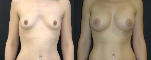 Augmentation mammaire composite de gros volume