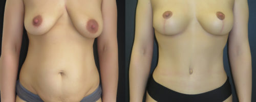 Mommy Makeover à 3 mois: abdominoplastie et lifting des seins