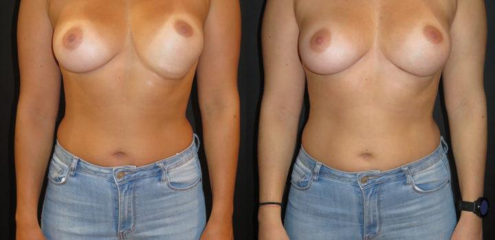 réparation sillon sous mammaire