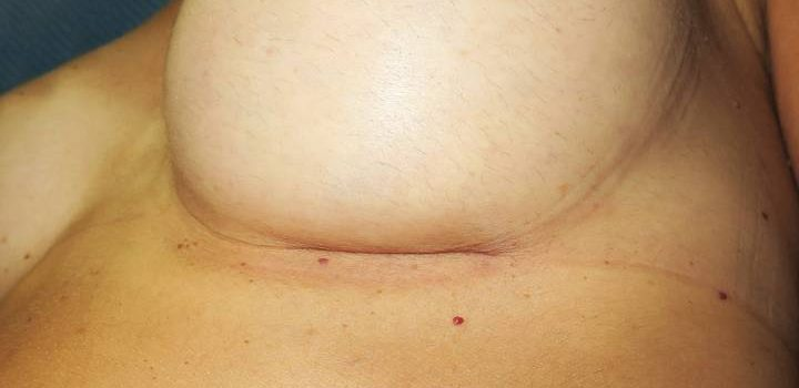 Cicatrice sous-mammaire à 1 mois pour prothèse mammaire (1)