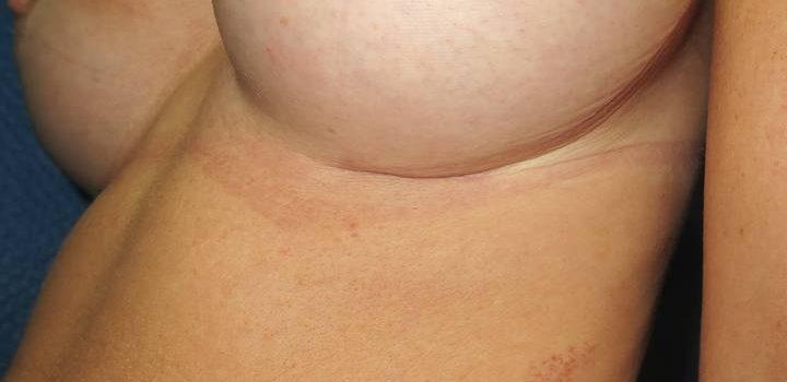 Cicatrice sous-mammaire à 1 mois pour prothèse mammaire (2)