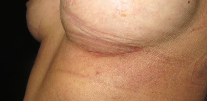 Cicatrice sous-mammaire à 1 mois pour prothèse mammaire (3)