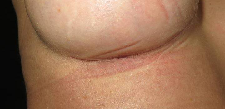 Cicatrice sous-mammaire à 1 mois pour prothèse mammaire (4)