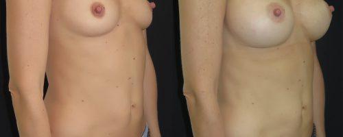 Augmentation mammaire composite avec prothèses anatomiques en Dual Plan
