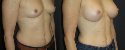 augmentation mammaire par prothèse en dual plan