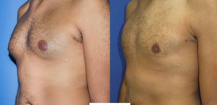 Gynécomastie - résultat à 6 mois (2)