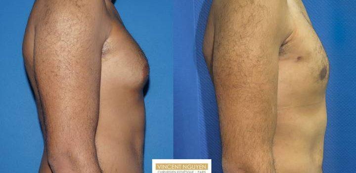 Gynécomastie - résultat à 6 mois (4)