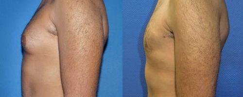 Gynécomastie - résultat à 6 mois (5)