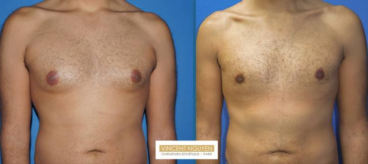 Gynécomastie - résultat à 6 mois (3)