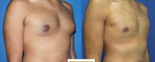 Gynécomastie - résultat à 6 mois (6)