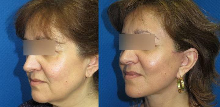 Lifting cervico-facial - résultat à 2 mois (3)