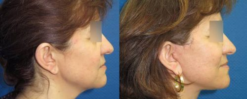 Lifting cervico-facial - résultat à 2 mois (4)