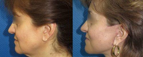 Lifting cervico-facial - résultat à 2 mois (5)