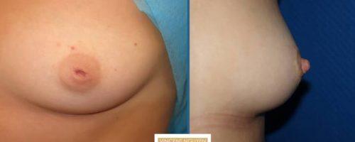 Mamelon invaginé, technique des 2 lambeaux - résultat à 1 mois (3)
