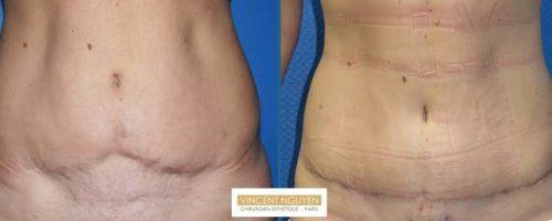 MiniAbdominoplastie pour reprise de plastie abdominale - résultat à 2 mois (2)