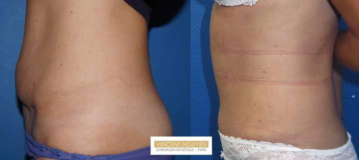 MiniAbdominoplastie pour reprise de plastie abdominale - résultat à 2 mois (1)