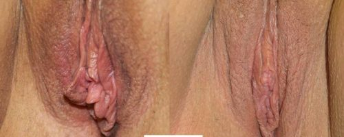 Nymphoplastie - résultat à 1 mois