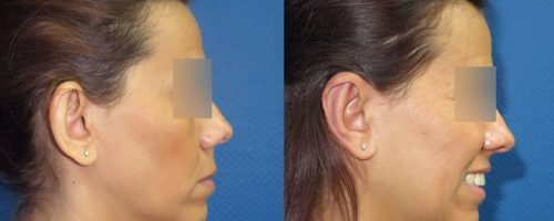 Otoplastie pour oreilles décollées - résultat à 3 mois (4)