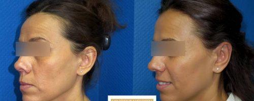 Otoplastie pour oreilles décollées - résultat à 3 mois (7)