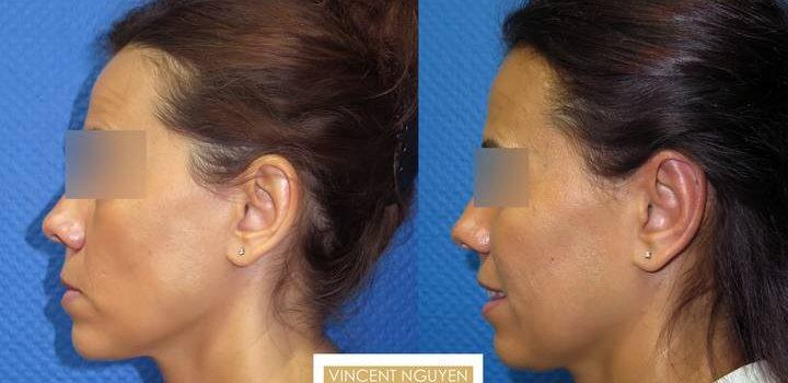 Otoplastie pour oreilles décollées - résultat à 3 mois (5)