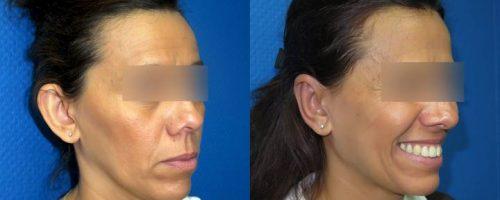 Otoplastie pour oreilles décollées - résultat à 3 mois (6)