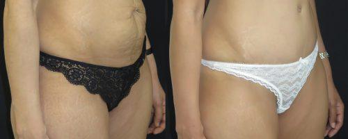 Plastie abdominale avec transposition de l'ombilic après grossesse