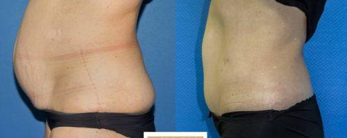Plastie abdominale avec transposition de l'ombilic et cure de diastasis- résultat à 6 mois (1)