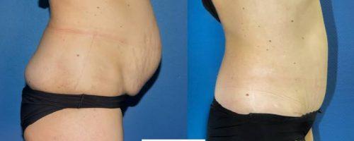Plastie abdominale avec transposition de l'ombilic et cure de diastasis- résultat à 6mois (2)