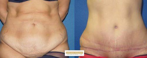 Plastie abdominale avec transposition de l'ombilic - résultat à 6 mois (2)