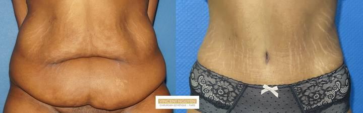 Plastie abdominale avec transposition de l'ombilic - résultat à 6 mois (4)