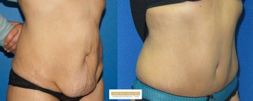 Plastie abdominale avec transposition de l'ombilic - résultat à 6 mois (6)