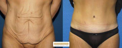 Plastie abdominale avec transposition de l'ombilic - résultat à 6 mois (7)