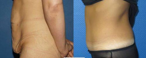 Plastie abdominale avec transposition de l'ombilic - résultat à 6 mois (8)