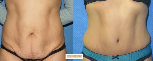 Plastie abdominale avec transposition de l'ombilic - résultat à 6 mois (9)