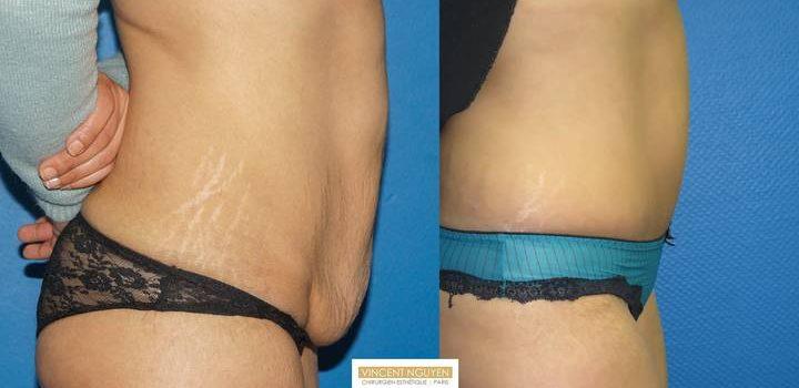 Plastie abdominale avec transposition de l'ombilic - résultat à 6 mois (10)