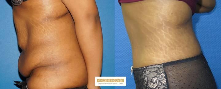 Plastie abdominale avec transposition de l'ombilic - résultat à 6 mois (3)