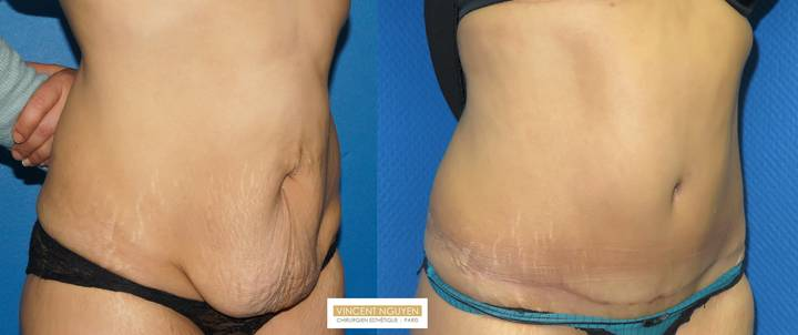 Plastie abdominale avec transposition de l'ombilic - résultat à 6 mois (5)