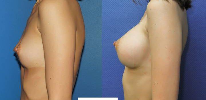 Prothèses mammaires DUAL PLAN - résultat à 2 mois (1)