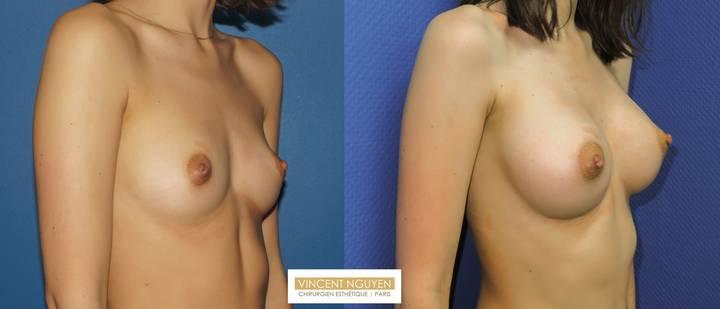 Prothèses mammaires DUAL PLAN - résultat à 2 mois (2)