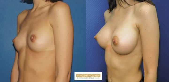 Prothèses mammaires DUAL PLAN - résultat à 2 mois (3)