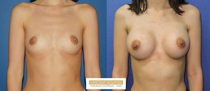 Prothèses mammaires DUAL PLAN - résultat à 2 mois (4)