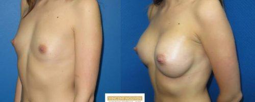 Prothèses mammaires - résultat à 1 mois