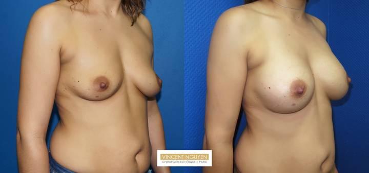 Prothèses mammaires - résultat à 6 mois(2)