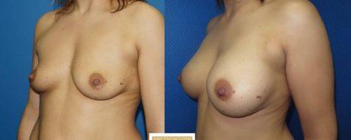 Prothèses mammaires - résultat à 6 mois(3)
