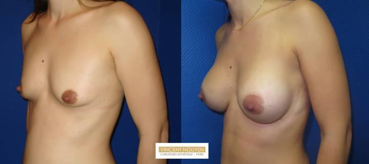 Prothèses mammaires - résultats à 3 mois (2)